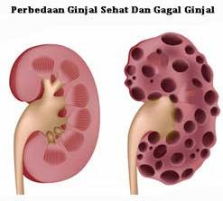 Obat Herbal Gagal Ginjal Tanpa Cuci Darah Green World
